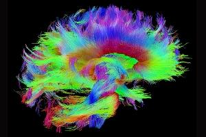 high field neuroimaging of computational processes that drive
